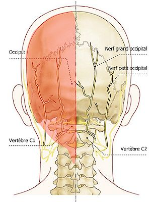 La névralgie d'Arnold - http://chiropratiquesillery.ca/la-nevralgie-darnold/