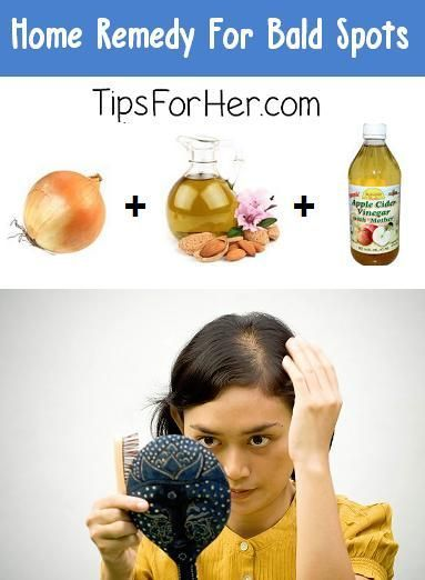 Home-Remedy-for-Bald-SpotsOnions have been used to help treat baldness and thinning hair for centuries.  Combined with a few simple ingredients, this makes a powerful home remedy.  What You Need: 1 onion 2 tbsp. Almond Oil 1 1/2 tbsp. ACV (Apple Cider Vinegar)Peel the onion and cut off the ends. Rinse and place in a blender and blend for around 45 seconds.  If you don't have a blender, slice and grate the onion.  In a small bowl, add around 2 tbsp. of onion and add almond oil and ACV. You…