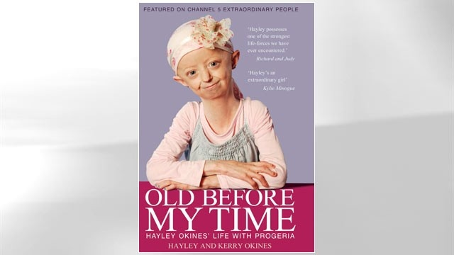 """I feel like I have a future to plan."" Hayley Okines talks about the success of US drug trials for progeria in an ABC special with Barbara Walters, ""7 Going on 70."""