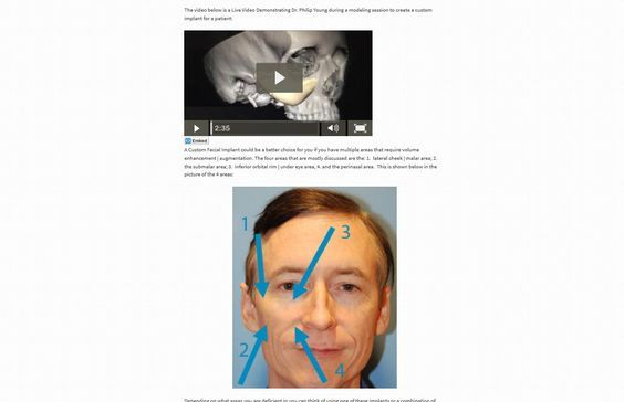 Facial Implant 3d Remodeling Video and Webpage. Learn more about Custom Facial Implants by Dr. Philip Young and his team at Aesthetic Facial Plastic and Reconstructive Surgery