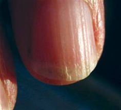 What Is Onychorrhexis? - longitudinal ridges and/or lengthwise splitting of the fingernails. This condition can be attributed to underactive thyroid, anorexia/bulimia, cancer, chronic dehydration. Can be painful, is definitely unsightly. Gel polish or acrylic nail wraps (done in salon or at home) can help hold the nail together until it grows out past the split. | article from Nails Magazine