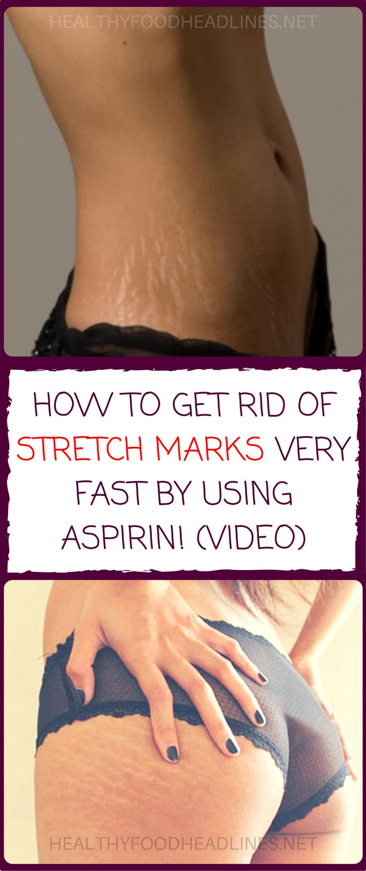 HOW TO GET RID OF STRETCH MARKS VERY FAST BY USING ASPIRIN! (VIDEO) http://whymattress.com/how-to-choose-the-best-mattress-for-back-pain/