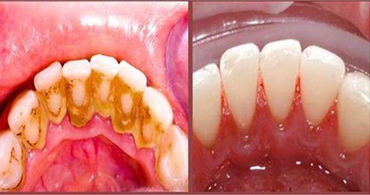 Essa dia é realmente muito importante alem de ser genial ,e sem efeitos secundários,seus dentes vai ficar super brancos e com um custo muito baixo e om apenas produtos naturais sem dentistas e sem químicas , O tártaro ou essas placas são apenas acumulo de fosforo e cálcio na superficial dos dentes. estas placas acumula-se …