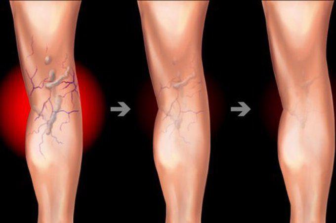 idee subțire a corpului cum să faceți o înveliș pentru pierderea în greutate