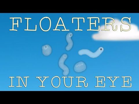 Sometimes,  against a uniform, bright background such as a clear sky or a blank  computer screen, you might see things floating across your field of  vision. What are these moving objects, and how are you seeing them?  Michael Mauser explains the visual phenomenon that is floaters.