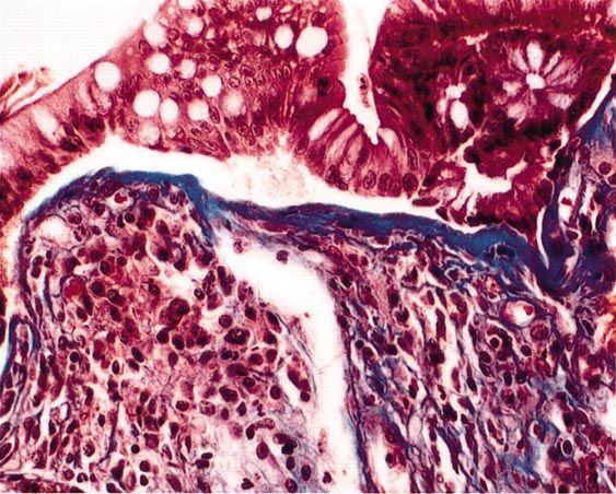 Chronic lymphocytic leukemia and autoimmunity: a ...