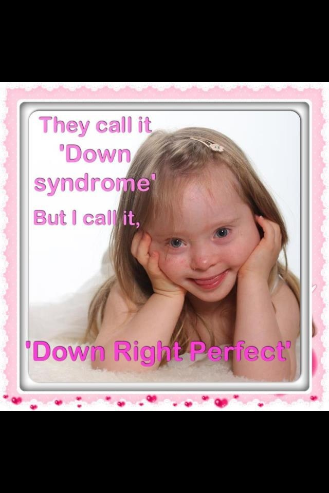 14 best images about Down syndrome kids on Pinterest ...