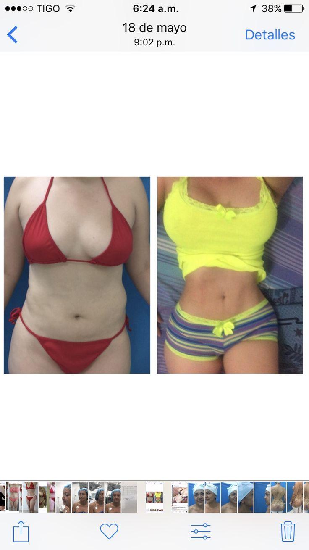 8 best Cirugía plástica de contorno corporal images on Pinterest