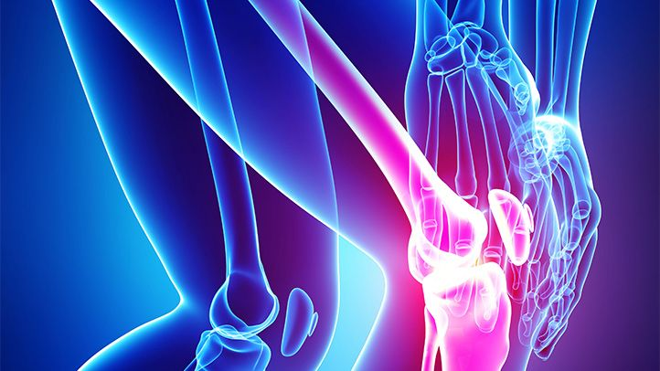 There are many options, from medication to surgery, for people who have osteoarthritis pain. Here are 13 natural remedies for osteoarthritis treatment.