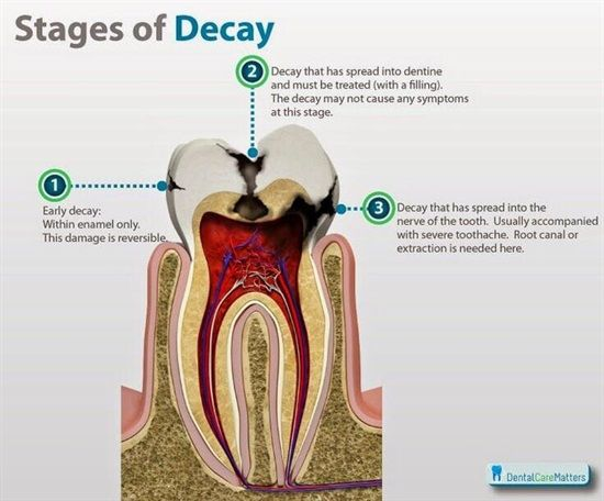 The 3 Stages of Decay: 1 Early Decay: Within enamel only. This damage is reversible. 2. Decay that has spread into dentine and must be treated with a filing. The decay may not cause any symptoms at this stage.  3. Decay that has spread into the nerve of the tooth. Usually accompanied with severe toothache. A root canal or extraction is needed here.    Dentaltown - Patient Education Ideas