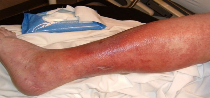 Cellulitis Infection: Cellulitis Causes and Risk Factors ...