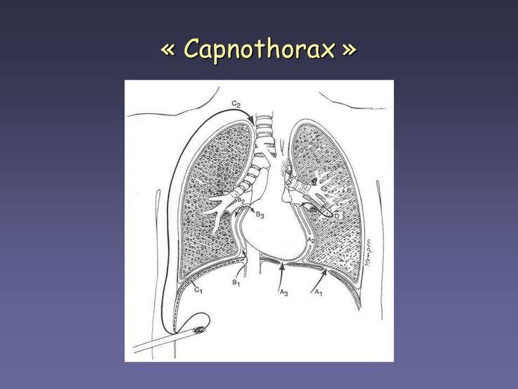Capnothorax na diagnostische laparoscopie  In deze klinische les beschrijven wij een patiënt met een bilaterale capnothorax na een diagnostische laparoscopie.  https://www.ntvg.nl/artikelen/capnothorax-na-diagnostische-laparoscopie/volledig