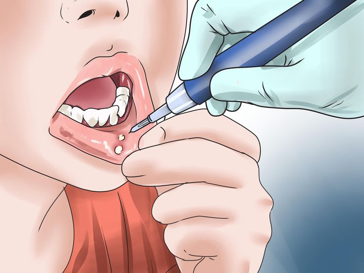 Canker sores, also known as mouth ulcers, can form on the gums, inner cheeks and lips (anywhere inside of the mouth). Canker sores, while annoying, are common, and usually heal in a week or two. They are not to be confused with cold sores,...
