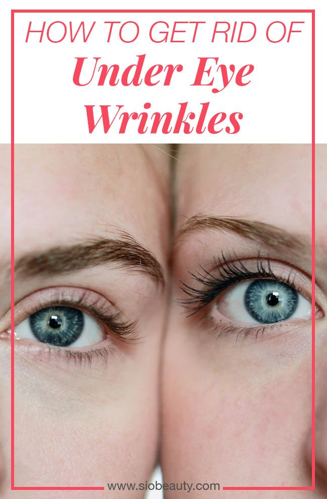 Getting rid of your under-eye wrinkles is a winning formula towards looking  younger. We've collected the five best home remedies for under-eye wrinkles  so ...