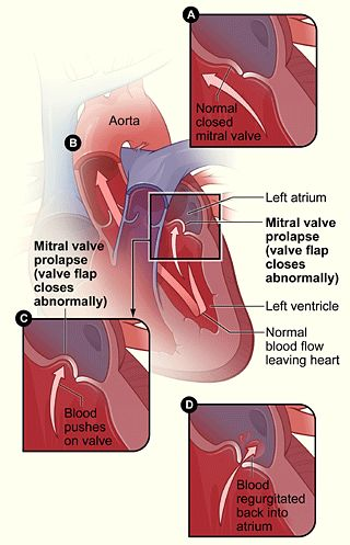 Mitral Valve Prolapse. Recently diagnosed with this after passing out while running. Yikes