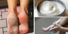 Apesar de os pés serem o suporte do nosso corpo todos os dias, a maioria das pessoas não dá importância até que notam que estão desenvolvendo imperfeições. O uso de calçado, a fricção contínua e o contacto com vários tipos de micro-organismos podem afetar a sua pele e, ao longo do tempo, causar calos, rachaduras …