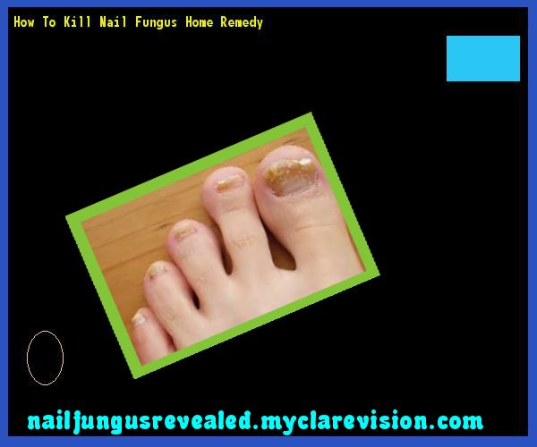 How to kill nail fungus home remedy - Nail Fungus Remedy. You have nothing to lose! Visit Site Now