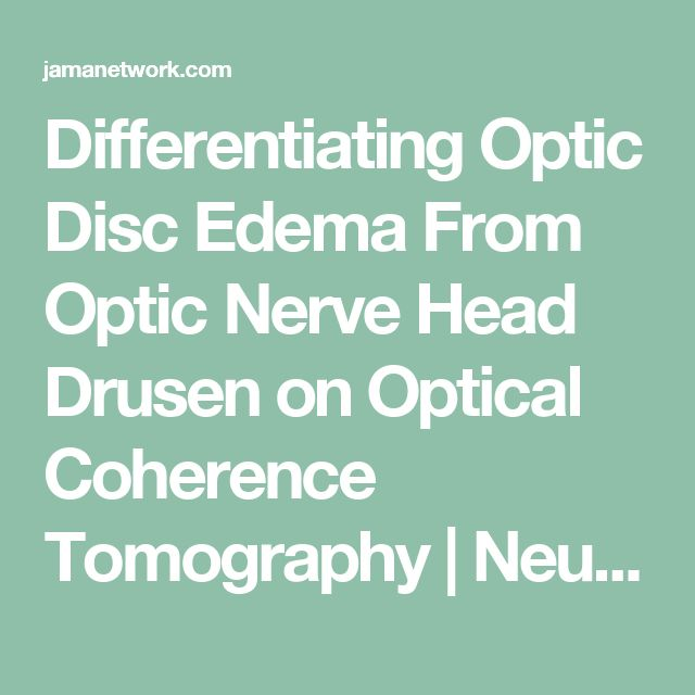 Differentiating Optic Disc Edema From Optic Nerve Head Drusen on Optical Coherence Tomography | Neuro-ophthalmology | JAMA Ophthalmology | The JAMA Network