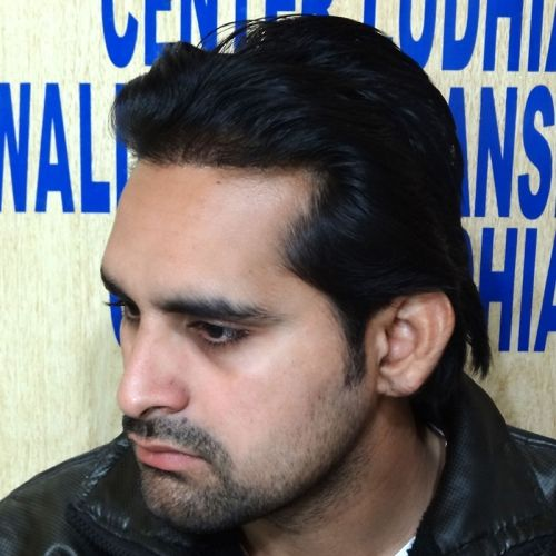 #Hair #Transplant #Cost in #Ludhiana | Hair Transplant Cost in Punjab India