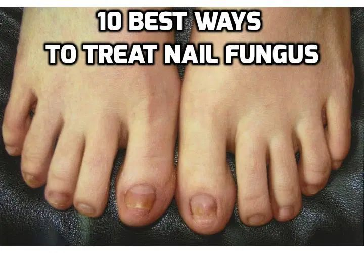 how long does it take to get rid of toenail fungus with bleach