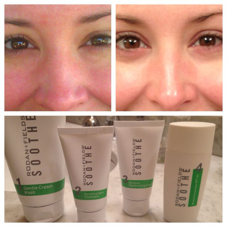 I use the Soothe regimen every morning & evening.  It has truly transformed my skin, as you can see from my before & after pic. -Shannon