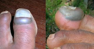 Dead Toenail - How to treat a dead toenail - Fungal Nail Infection Treatment - Cure Infected Toenails Fast