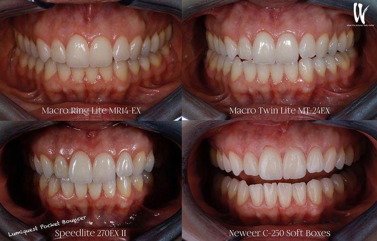 Lights..... flashin @whenthepicturesreallymatter  #savethecingulum #responsibleesthetics #canon #lifestyle #nextlevel #inspiration #dentalassistant #dentalhygienist #dentista #odonto #odontologia #dentist #carillas #veneers #teeth #beforeandafter #Dentistry #Artist #dentalphotography #smile #portrait #NYC #PhotoOfTheDay #Love #Followme #instagood #instadaily #justgoshoot #CollectivelyCreate #portraits