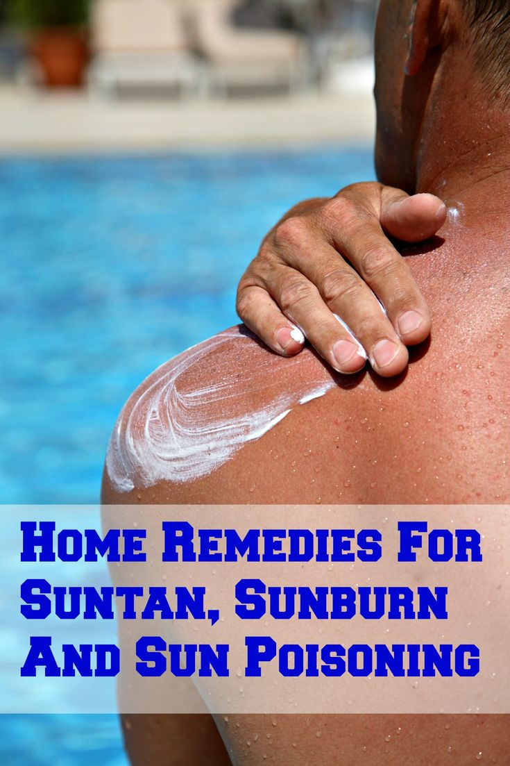 Home Remedies For Suntan, Sunburn And Sun Poisoning