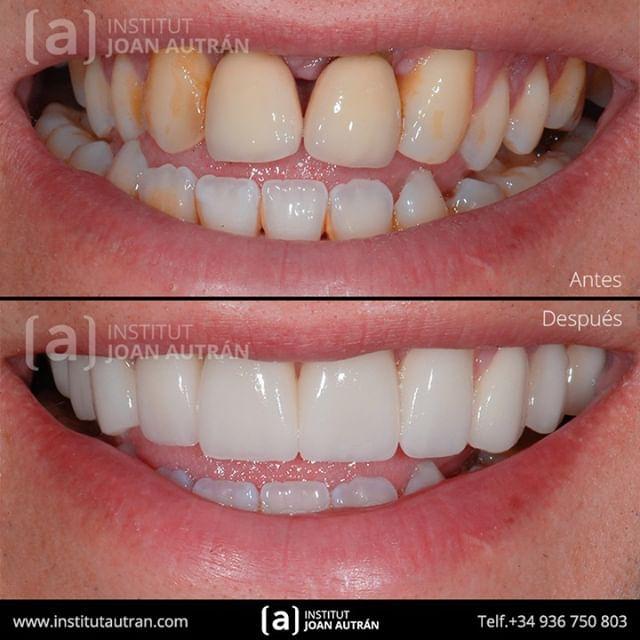 Devolviendo Sonrisas Naturales Con El Tratamiento De Carillas Sin Tallado Top Smile Con El Máximo Respeto A Los Dientes Dental Tooth Repair Dental Aesthetics