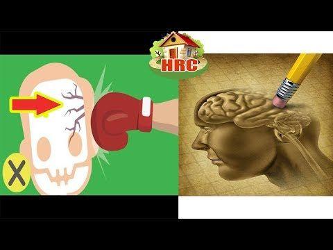 (957) ¿Podrías perder la memoria por un golpe en la cabeza? Lo que se descubrio es Alarmante! - YouTube