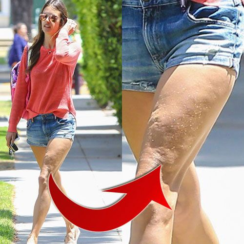 17 Best images about Celebrity Cellulite on Pinterest ...