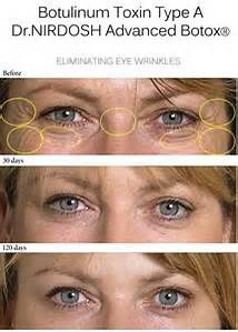 images of botox under eyes - Bing images