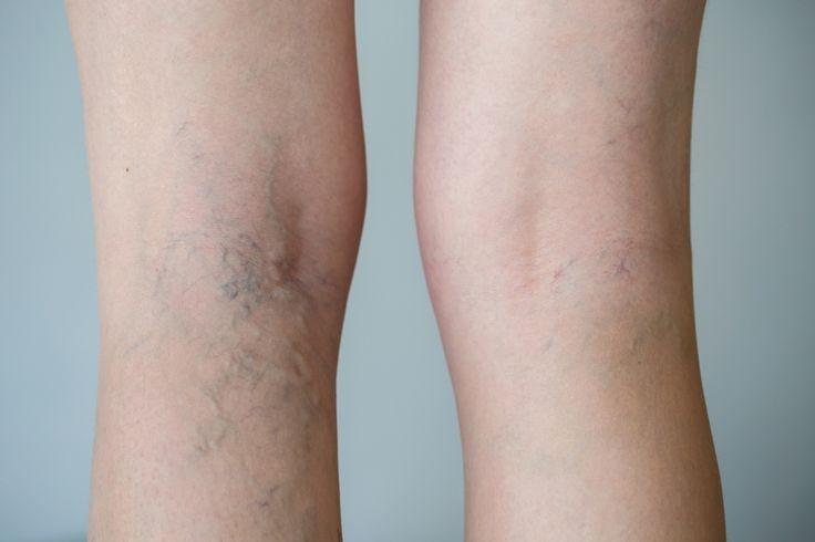 Sintomas de má circulação nas pernas