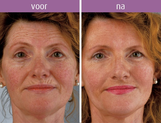Als u kiest voor biologische huidverjonging. www.pascaud.com
