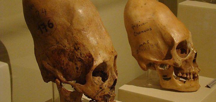 Тайны существ с длинными... http://uinp.info/important_news/tajny_sushestv_s_dlinnymi_cherepami  Длинные черепа находили в разных уголках мира в древних захоронениях. Большинство из этих находок являются результатом намеренной деформации черепа, которую осуществляли в раннем возрасте при помощи тесных повязок. Некоторые случаи специалисты объясняют заболеваниями. В то же время, все эти черепа остаются загадкой для ученых. А все потому, что вокруг их происхождения существует немало теорий и…