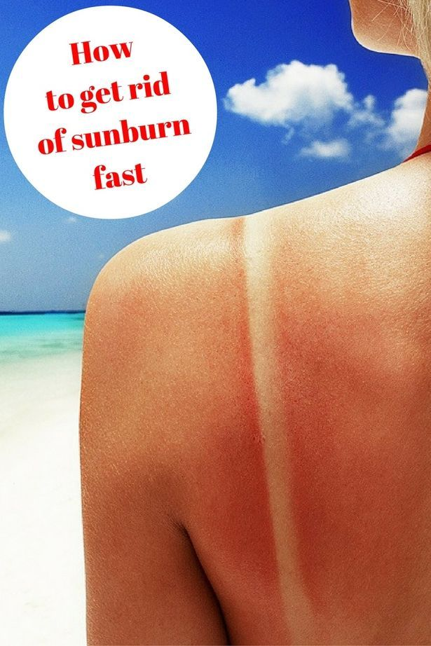 How to get rid of sunburn fast if you've overdone it in the heatwave