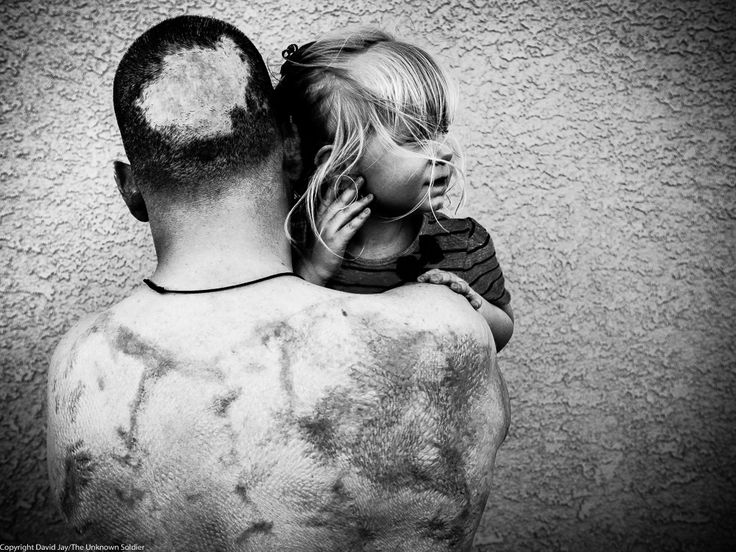 Best VETS Images On Pinterest Bryan Adams Afghanistan And - Powerful photographs injured british soldiers bryan adams