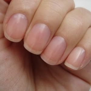 how to stop peeling my nails