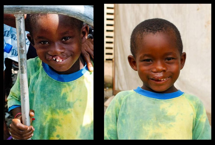 Kofi before and immediately after cleft lip surgery in Accra, Ghana.   http://www.operationsmile.org/living_proof/from-the-field/2011/accra-ghana-dec.html: Cleft Lip