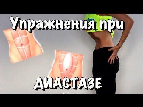 УПРАЖНЕНИЯ при ДИАСТАЗЕ после родов! - YouTube
