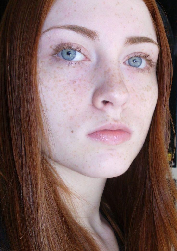 177 besten freckles bilder auf pinterest | sommersprossen