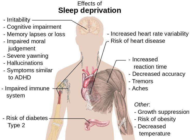 Effects of #sleep deprivation