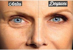 Receta efectiva para atenuar ojeras y bolsas bajo los ojos.