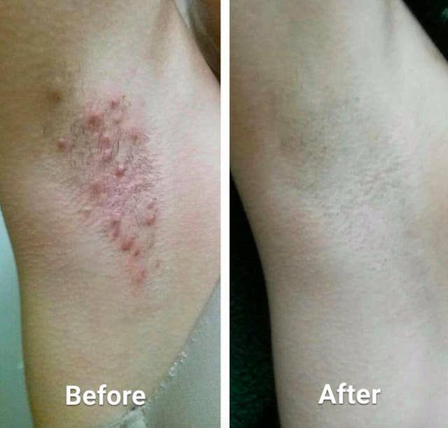 36 Ways To Change Up Your Skincare Routine For Cheap Ingrown Hair Ingrown Hair Remedies Tend Skin