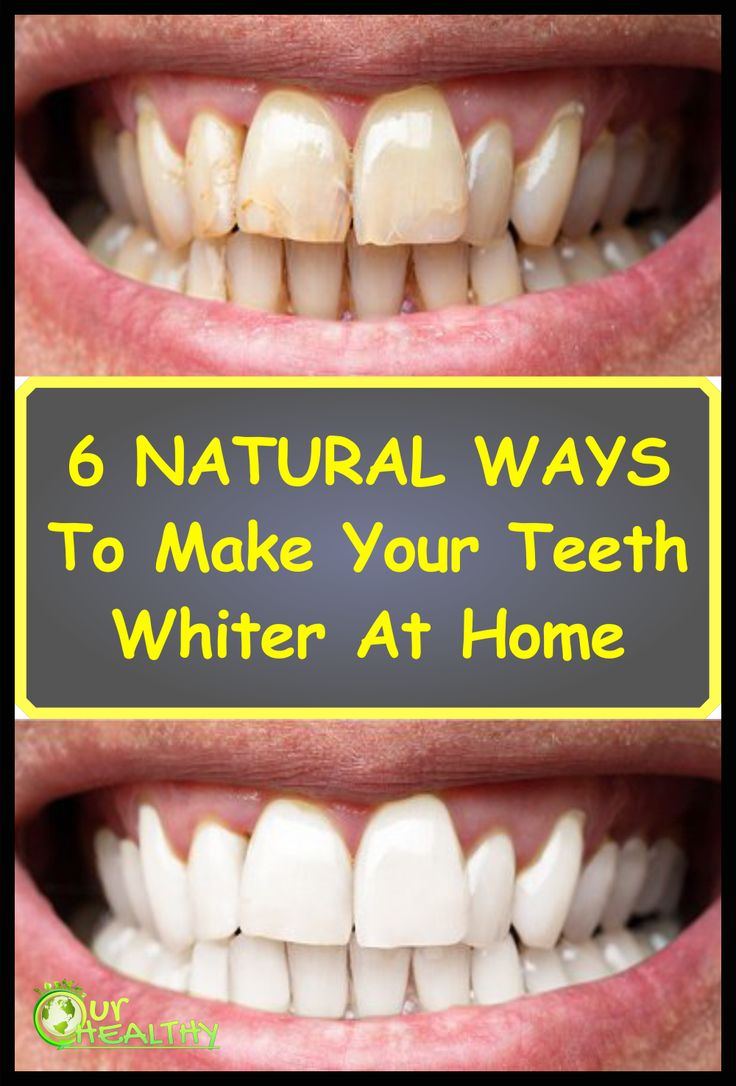 6 natural ways to make your teeth whiter at home in 2020