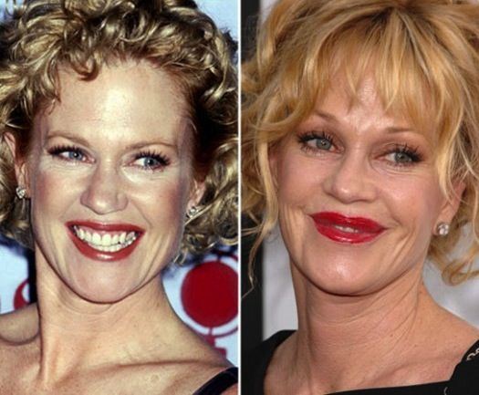 Botched plastic surgery celebrities