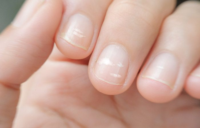 Effects Of Nutrient Deficiency On The Nails What Do They Indicate About Your Health White Spots On Nails Nail Health Signs White Lines On Nails