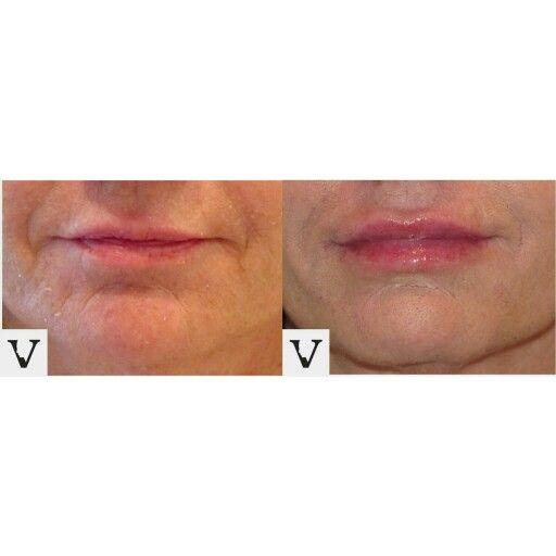 Lip augmentation &  Rejuvenation #boston #facelift #face #radiesse #juvederm #botox #sculptra #rhinoplasty #nosejob #lips #eyes #chin #augmentation #jaw #reduction #face #slimming #visagesculpture #mashabanar #restylane #radiesse #botox #sculptra #nose #surgery #alternative #injection #expert #newton #asymmetry #correction #reconstruction #hiv #lips #eyes #beauty #taste #youth #young #proportion #selfesteem
