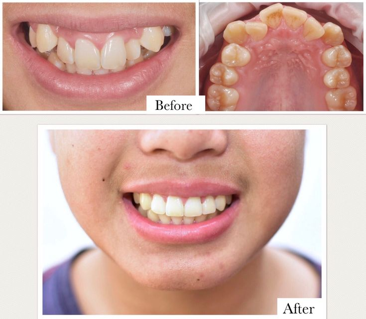 Pin by nathan dr le on orthodontics and braces with