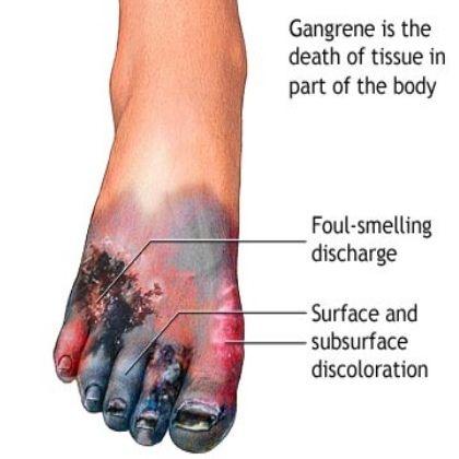 5 major symptoms of gangrene in diabetes | diabetes defeated, Cephalic vein